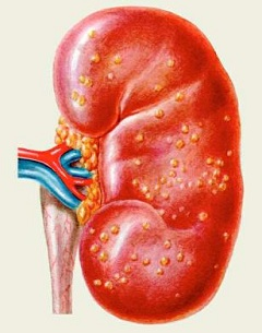 chronic nephritis - treatment, symptoms, types, Skeleton
